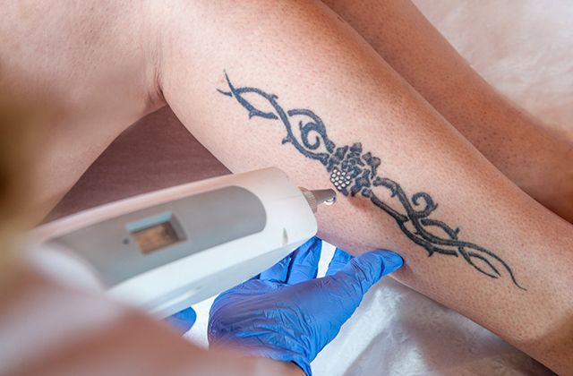TCA Peels For Tattoo Removal